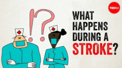 Blog Article 2020.5 - ted - what-happens-during-a-stroke